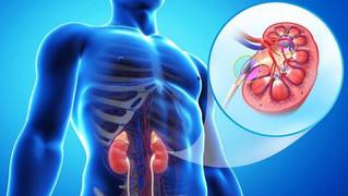 Diagnóstico tardío en enfermedad renal crónica pone en peligro la vida