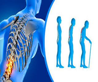 La carga económica de la osteoporosis será de millones de dólares en cinco años