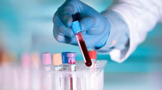 Diagnóstico oportuno, desafío en las enfermedades onco-hematológicas