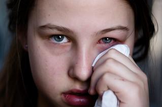 Conjuntivitis puede causar inflamación de la córnea
