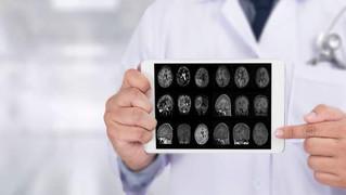 Advierten sobre enfermedad cerebral que se parece al Alzhéimer
