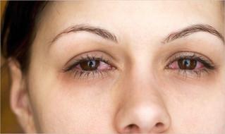 Mujeres, las más afectadas por la uveítis