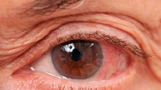 9 de cada 10 casos de ceguera por glaucoma pueden evitarse