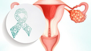 Necesario impulsar la conciencia sobre el Cáncer de Ovario en México