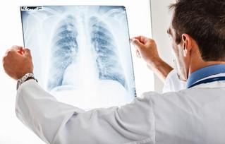 Fibrosis Pulmonar Idiopática y Esclerodermia, enfermedades raras que afectan a los mexicanos