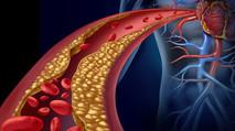 Aprueban medicamento para reducir el colesterol con dos dosis