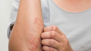 Dermatitis atópica, uno de los padecimientos dermatológicos más frecuentes.