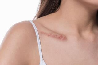 Cicatrices, pueden afectar salud mental y emocional