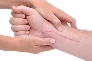 """Peligroso, aplicar """"remedios caseros"""" para eliminar cicatrices"""