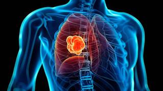 Medicina personalizada, alternativa en el tratamiento de cáncer de pulmón