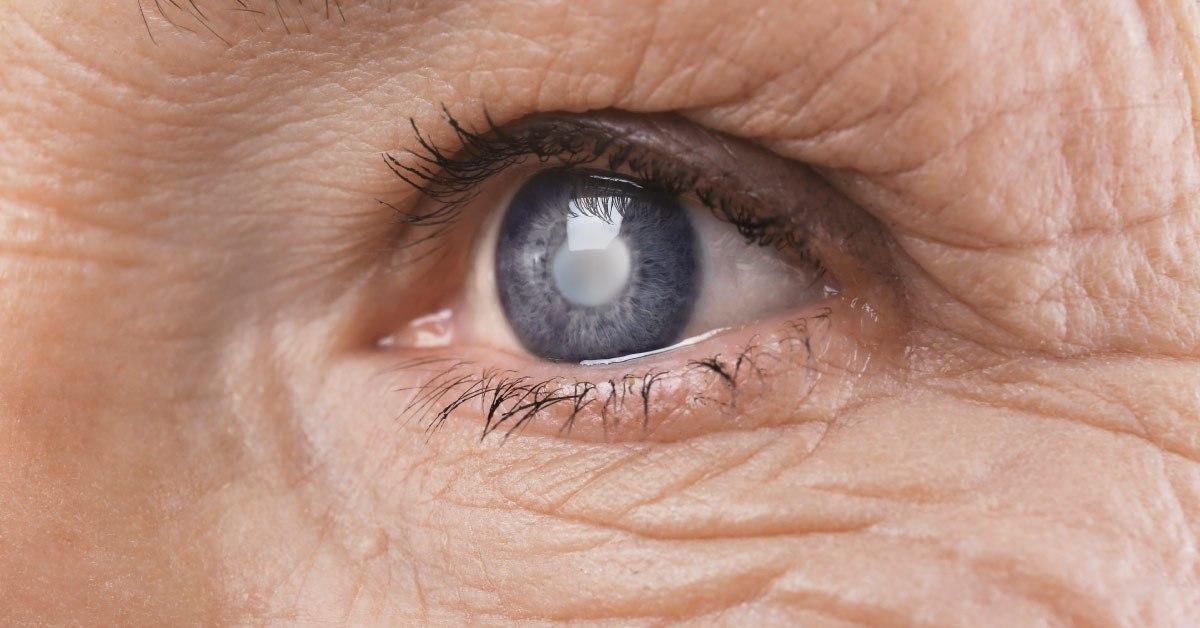 Glaucoma: padecimiento incapacitante que afecta a mujeres en edad productiva