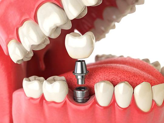 diente-dental-implante-sonrisa.jpg