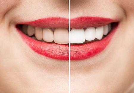 Blanqueamiento dental. Preguntas frecuen