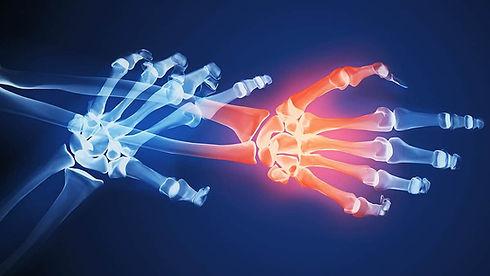 artrite-reumatoide-dor.jpg