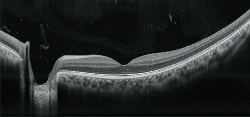 OCT imaging Retinal Scan