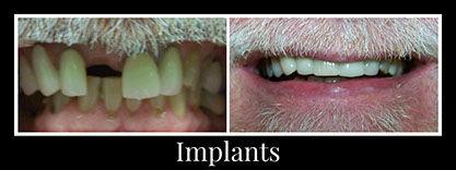 implanted.jpg