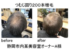 静岡市 増毛 美容室 3D増毛 薄毛 はげ 禿 ハゲ