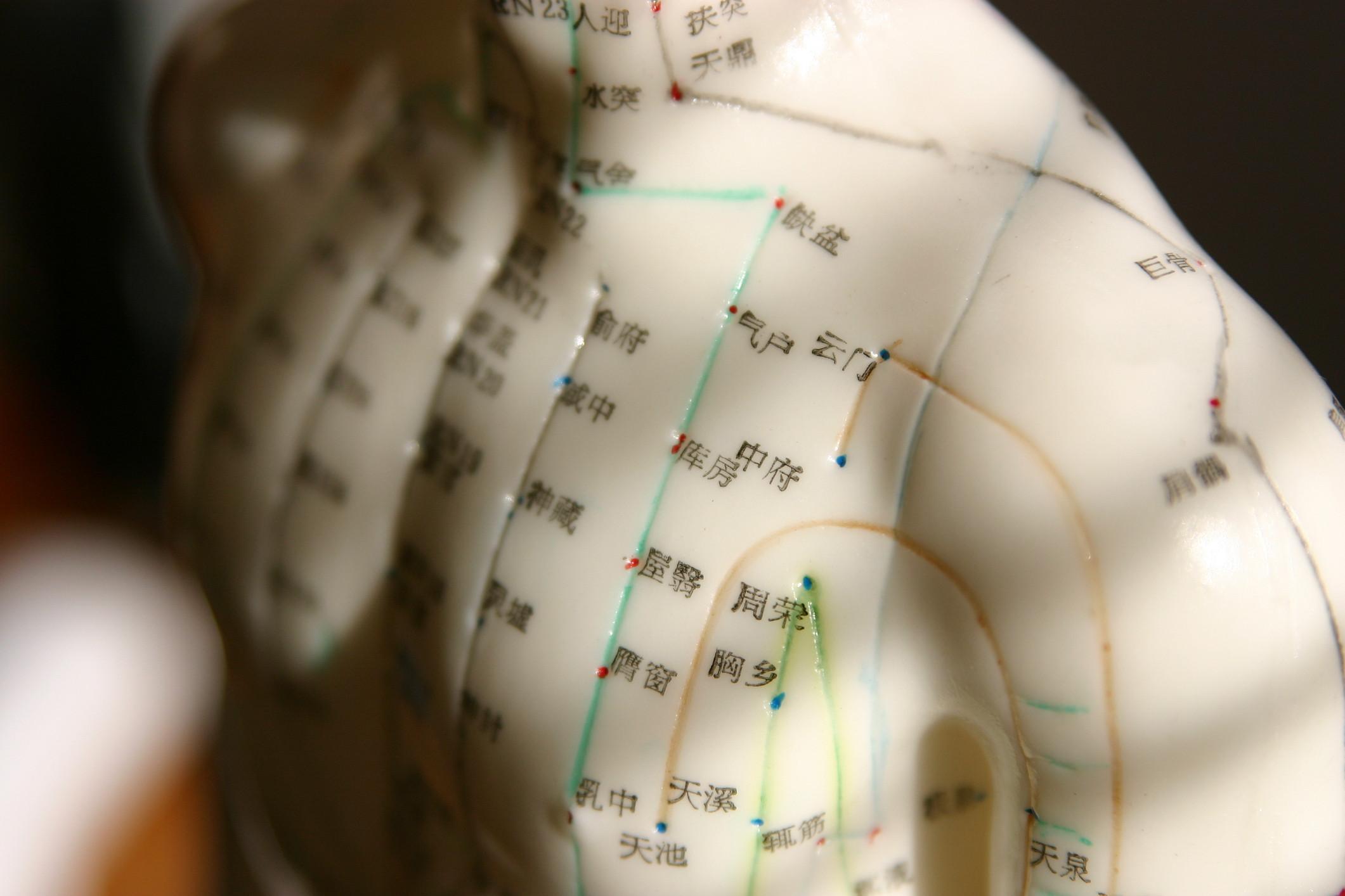 Acupuncture standard