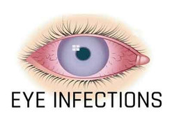 Do I have an eye infection?