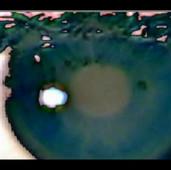 Göz Bebeği / Iris