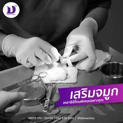 เสริมจมุก ดีวา คลินิก พัทยา rhinoplasty