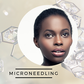microneedling.png