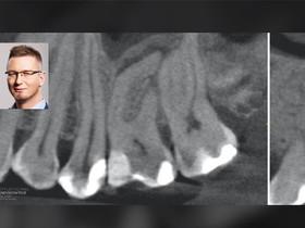PRZYPADKI: Dr Bartłomiej Karaś - Opuszki płaczą do dziś... a przypadek sprzed tygodnia.