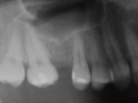 PRZYPADKI: Dr Kris Owczarczak - Niesamowita historia pewnego implantu.