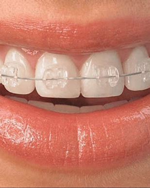 Ортодонтия.jpg