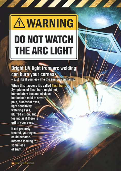 Welding Arc Light Warning Safety Posters