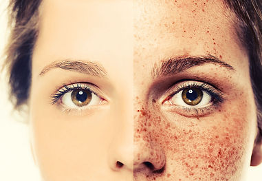 Age Spots & Sun Damage Improvement at Sylvana Institute Med Spa Frederick Maryland