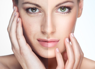 Chemical Peels … An Apropos Skin Care Treatment for Summer