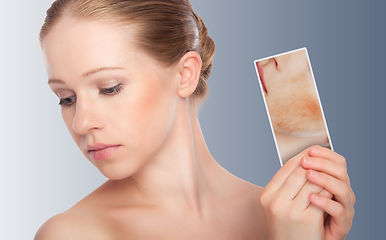 Acne & Acne Scarring Improvement at Sylvana Institute Med Spa Frederick Maryland
