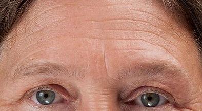 Forehead Wrinkles 1.jpg