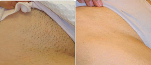 Laser-Hair-Removal-Before-and-After-Biki