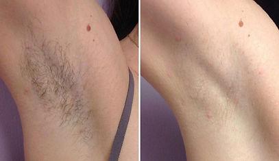 laser_hair_removal_cormedspa_2_edited.jp