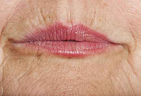 Smoker's Lines and Thin Lips Improvement at Sylvana Institute Med Spa Frederick Maryland