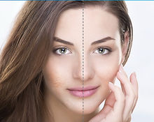 Bellafill for Acne Scarring at Sylvana Institute Med Spa Frederick Maryland