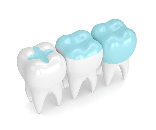dentalsealants.jpeg