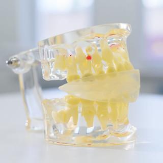 artificial-transparent-jaw-lies-table.jp
