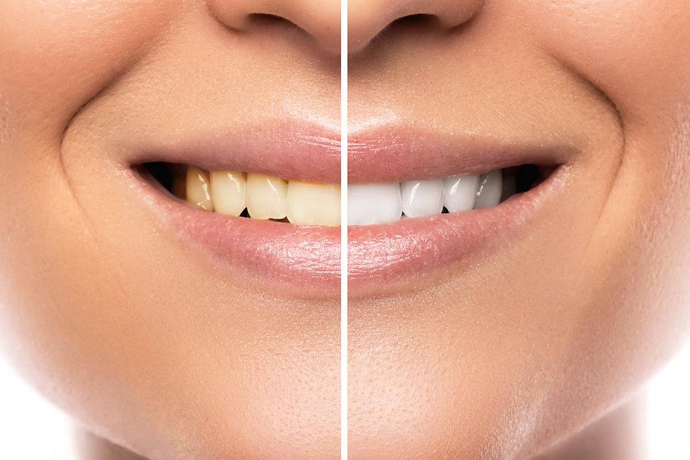 comparison-after-teeth-whitening.jpg