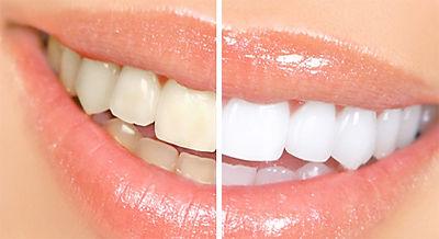 0000teeth-whitening-1.jpg