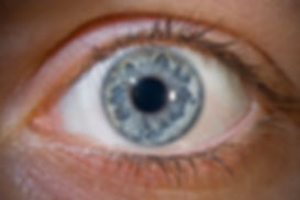 6-Iridology& Herbal Consultation .jpg