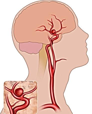 Brain aneursym.jpg