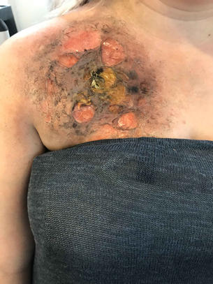 SFX make up for a chemical burn.