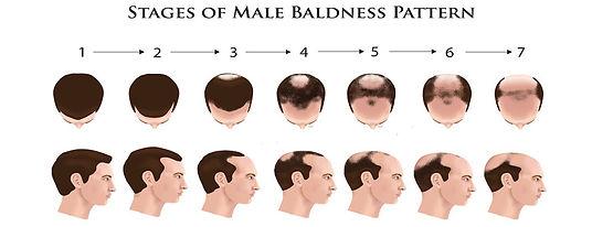 hair-loss-progress-men.jpg