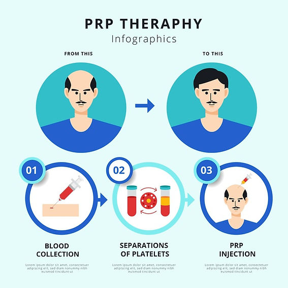 flat-hand-drawn-prp-procedure-infographi