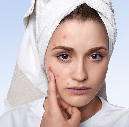 portrait-young-woman-having-problem-skin