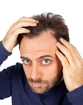 Canva-Anxious-man-inspecting-hairline-on