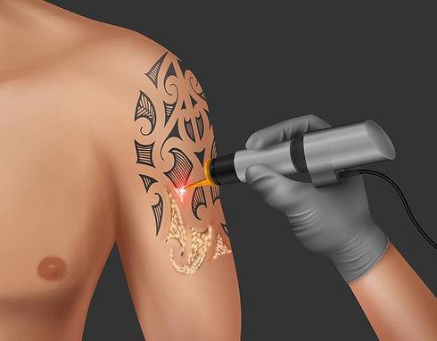 realistic-illustration-laser-tattoo-remo